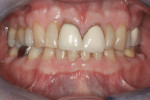 Figure 5 Retracted pre-whitening photograph of Subject #9 with shade A4 adjacent to old, opaque A1/B1 PFM crowns.