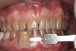 Figure 3 Subject #2 presented with a severe tooth discoloration on anterior maxillary teeth and pre-whitening tooth shades of A4. The 5M2 shade tab is the equivalent of an A4 in the VITA Classic guide.