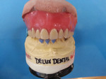 Finished overdenture