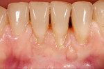 Figure 4. Overall tooth complex with disharmony between soft tissue and teeth.