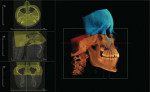 Figure 5  Examples of InVivoDental applications presently under development in which adjacent CBCTimage volumes can be stitched together to provide a larger effective FOV. The cranium is stitchedto the maxillofacial structures using two overlapping N