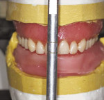 Figure 5a  The orientated existing maxillary dentate.