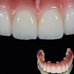 Figure 1 Burbank Dental Laboratory offers three distinct options when choosing a screw-retained hybrid-type prosthesis.