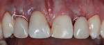 Figure 1 Interim partial denture without tissue contact in surgical sites No. 7 and No. 10. Implant treatment was indicated because of congenitally missing lateral incisors. Teeth No. 8 and No. 9 had been restored with composite following trauma to these teeth in childhood.