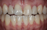 Figure 2 Interim partial denture teeth No. 7 and No. 10 modified for better esthetics.