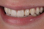 Figure 9 Esthetically pleasing final restorations seen in the patient's smile. Note the low smile line.