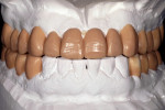 Figure 13  A diagnostic wax-up to idealize the esthetic and occlusal relationship following model surgery.