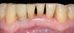 Figure 9 Final restoration after 3 months showing successful esthetic outcome.