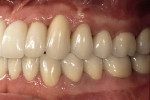 Figure 18  Final restoration, including implant supported fixed partial denture across #7 through #10.