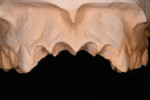 Figure 5 The master cast was modified by cutting off the teeth that will be extracted. The free gingival margin was outlined and maintained.