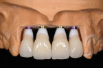 Figure 13 The surgical template was used to add the implant analogues to the master cast. Zirconia abutments were placed, and temporary restorations were fabricated for immediate delivery at the time of surgery.