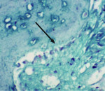 Figure 1 Biopsy report for NanoGen with Masson's trichome stain at 40X: The newly formed bone is bluish green in color, which can differentiate it from the parent bone. Arrow shows lining osteoblasts with red nucleus