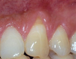 Figure 3a  The labial surface of tooth No. 11 shows 3 mm of gingival recession. Note the margin of keratinized tissue.