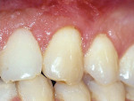 Figure 3b  There is a margin of keratinized tissue; therefore, a coronally positioned flap was used to correct the gingival recession.