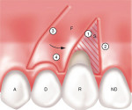 Figure 4a  Incisions for a laterally positioned graft. R-recipient tooth; D-donor tooth; A-adjacent tooth; ND-nondonor tooth; F-flap; S-split-thickness dissection; E-exposed bone or periosteum.