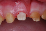 Figure 5 Tooth preparation for resin-veneered stainless steel crown.