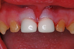 Figure 6 Resin-veneered stainless steel crowns, immediately after cementation.
