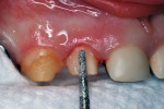 Figure 9 Diamond bur preparation of right lateral incisor.
