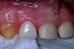 Figure 14 Zirconia crown fitted and cemented.