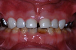 Figure 19 Central incisors 3 years postoperatively; lateral incisors and canine teeth, 18 months after treatment.