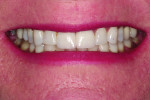 Figure 18 Post-treatment smile showing seated crowns.