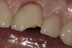 Figure 6  A case that failed clinically after 38 months. There was significant dentin exposure and lingual wrapping.