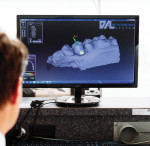 Fig 2 and Fig 3. Ryan Johnson designs a model using exocad® DentalCAD software.