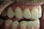 Figure 5  Bonded ceramic restorations shouldfilter underlying color while allowing light to circulatefreely within the tooth.