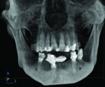 Additional views from CBCT scan at 6 months post-treatment demonstrating osseous fill and integration of implants.