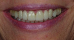 Case 2 post-treatment. Fixed ceramic bridges on teeth No. 6 through No. 8 and No. 9 through No. 11 provided pleasing, natural-looking esthetics.