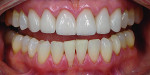 Case 3 post-treatment full smile and retracted views. Follow-up demonstrated excellent healing and esthetic results final results and occlusal stability was confirmed.
