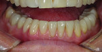 Case 1 post-treatment. Mandibular restorations included veneers and crowns following corrections to occlusion.