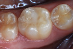 Figure 20 Mandibular molar photographed 4 months after treatment.