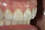 Figure 14  Feldspathic veneers were used to achieve final esthetics.