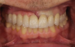 Fig 19 and Fig 20. A try-in of the cast framework to evaluate the gingival color and position.