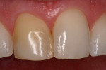 Figure 2  The discolored right central incisor.
