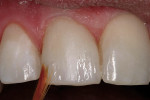Figure 13  A violet tint was applied to tooth.