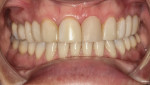 Case 2 pretreatment; patient desired a natural-looking whiter smile.