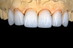 Material selection and shading reflect the need for translucency, texture, and the ability to blend into the existing dentition and gingiva.