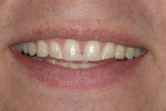 Preoperative smile. Note wear on all of the anterior teeth, most notably the tips of the maxillary and mandibular canines.