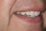 Final postoperative smile with IPS e.max crowns on teeth Nos. 6-11; veneers on teeth No. 22-27 will be phased in.