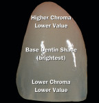 Figure 4  Image of the same natural tooth, which shows the natural color contrasts that exist within the tooth.