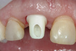 A custom zirconium implant abutment was placed.