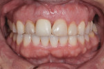 Close-up view of the patient's anterior maxillary dentition following completion of orthodontics, periodontal treatment, and implant placement, but prior to initiating definitive restorative treatment.