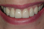Figure 19  In the final restoration, ceramic crowns of normal proportions and appropriate shade have restored esthetic balance.