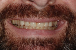 "Figure 8 Close-up of smile with composite ""test teeth."""