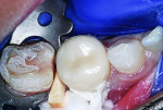 UL6 zirconia crown luted using resin-modified glass ionomer cement.