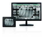 DEXIS imaging software are offered in PC, MAC, and app platforms.