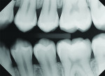 Better coverage of the canine-premolar contact area.
