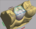 Figure 1&ensp; The CEREC<sup>®</sup> 3D design software, used chairside by dentists and auxiliaries in the design of inlay, onlay, partial crown, full crown, and veneer ceramic restorations.